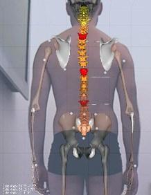 BODY ANALYSIS KAPTURE – 3D RECONSTRUCTION